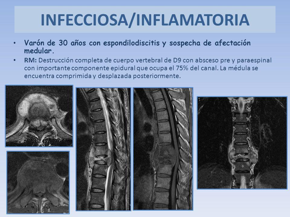 Varón de 30 años con espondilodiscitis y sospecha de afectación medular. RM: Destrucción completa de cuerpo vertebral de D9 con absceso pre y paraespi
