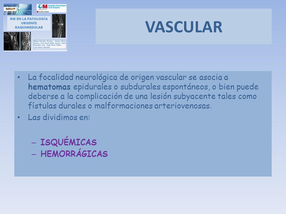 VASCULAR La focalidad neurológica de origen vascular se asocia a hematomas epidurales o subdurales espontáneos, o bien puede deberse a la complicación