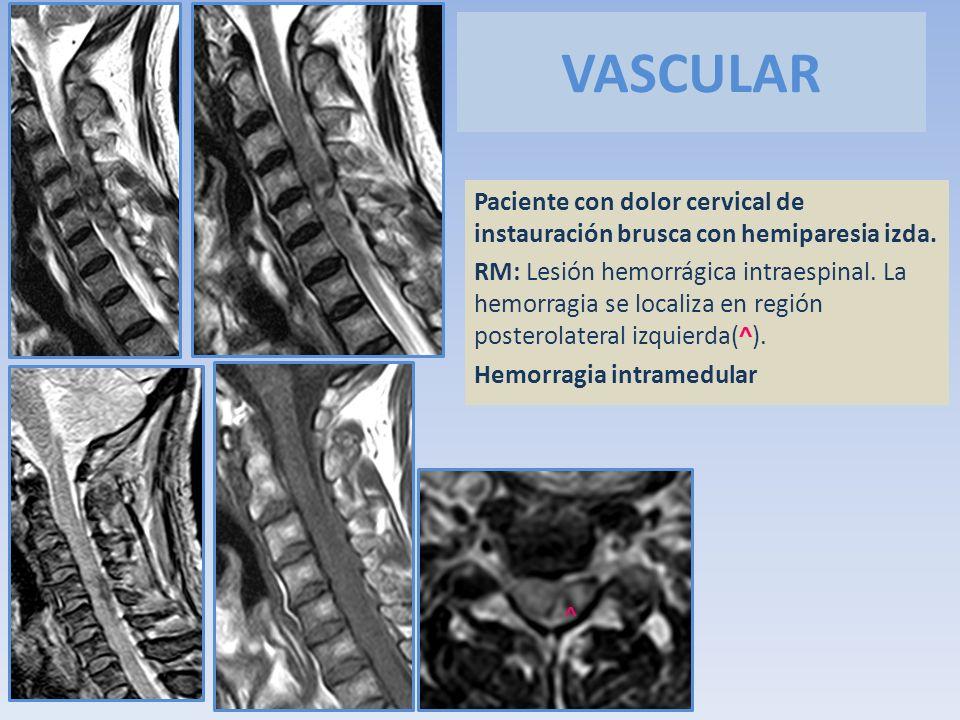VASCULAR Paciente con dolor cervical de instauración brusca con hemiparesia izda. RM: Lesión hemorrágica intraespinal. La hemorragia se localiza en re
