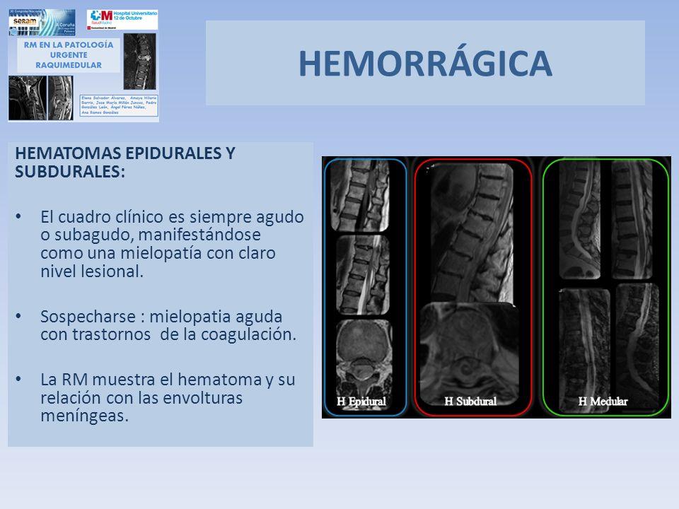 HEMATOMAS EPIDURALES Y SUBDURALES: El cuadro clínico es siempre agudo o subagudo, manifestándose como una mielopatía con claro nivel lesional. Sospech