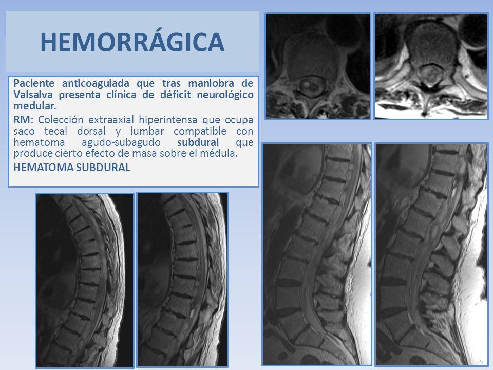 Paciente anticoagulada que tras maniobra de Valsalva presenta clínica de déficit neurológico medular. RM: Colección extraaxial hiperintensa que ocupa