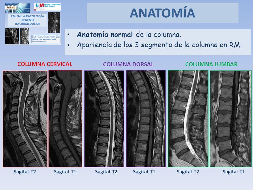 Anatomía normal de la columna. Apariencia de los 3 segmento de la columna en RM. ANATOMÍA COLUMNA CERVICAL COLUMNA DORSALCOLUMNA LUMBAR Sagital T1 Sag