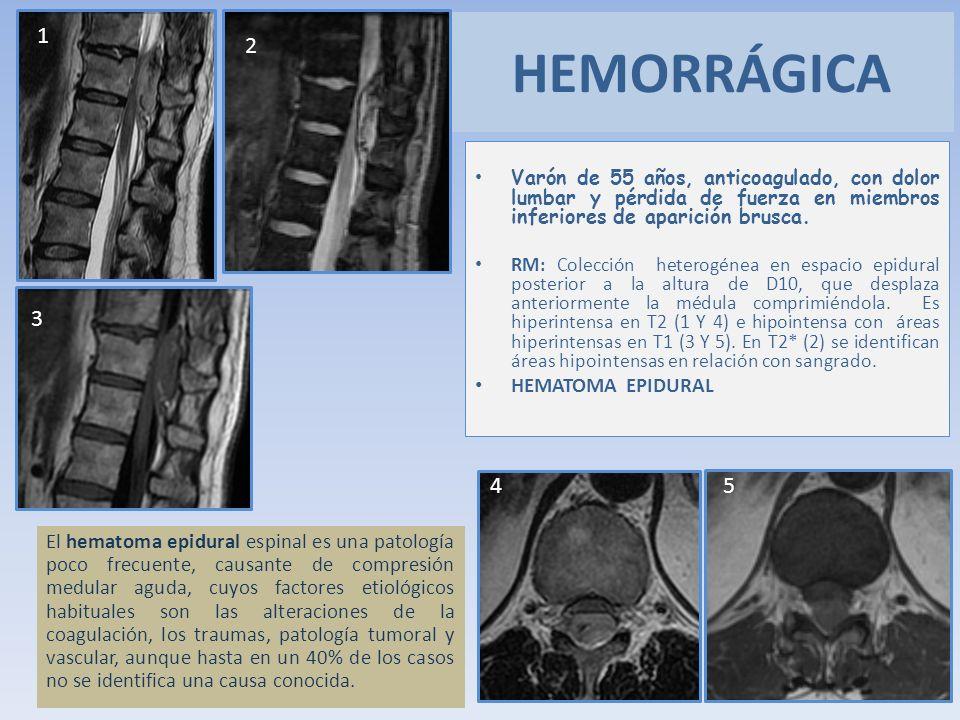 Varón de 55 años, anticoagulado, con dolor lumbar y pérdida de fuerza en miembros inferiores de aparición brusca. RM: Colección heterogénea en espacio