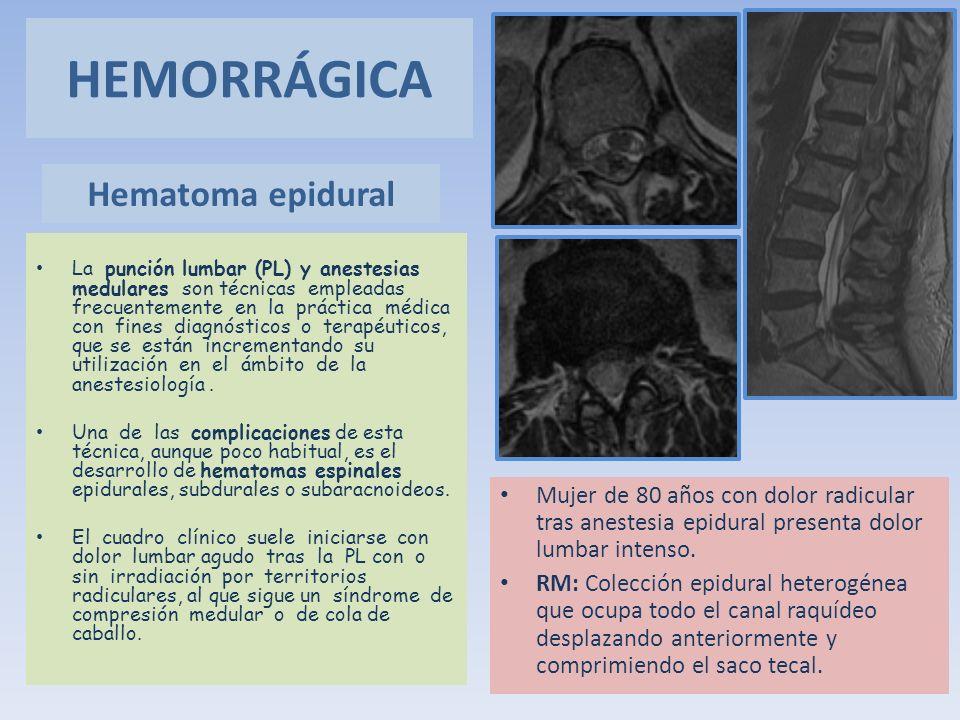 Hematoma epidural Mujer de 80 años con dolor radicular tras anestesia epidural presenta dolor lumbar intenso. RM: Colección epidural heterogénea que o