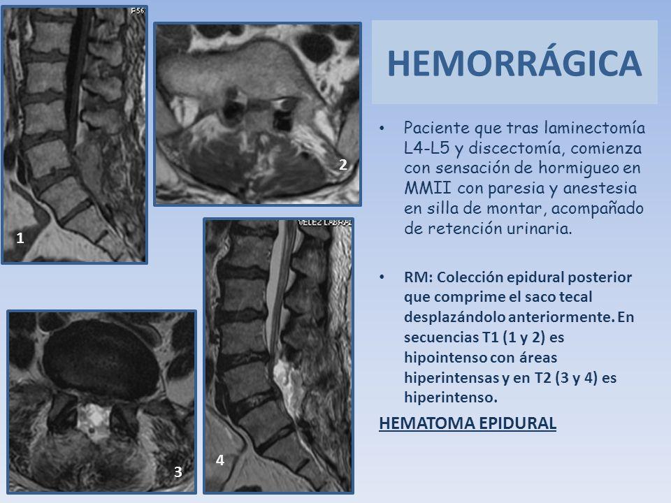 Paciente que tras laminectomía L4-L5 y discectomía, comienza con sensación de hormigueo en MMII con paresia y anestesia en silla de montar, acompañado