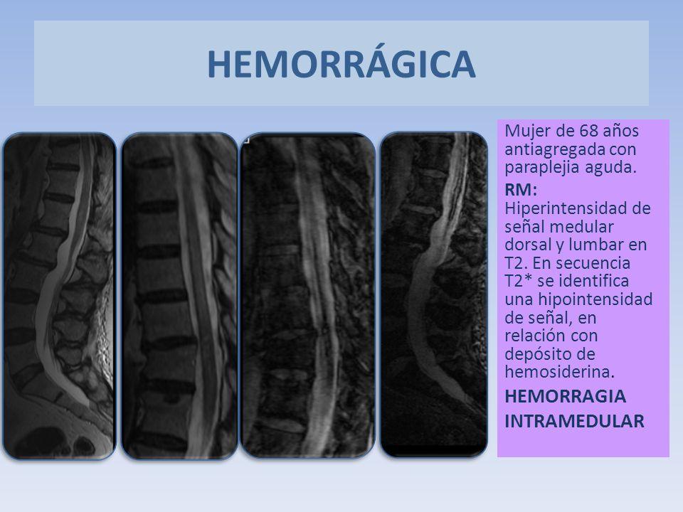 Mujer de 68 años antiagregada con paraplejia aguda. RM: Hiperintensidad de señal medular dorsal y lumbar en T2. En secuencia T2* se identifica una hip