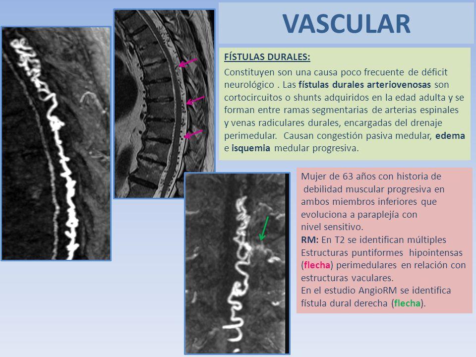 FÍSTULAS DURALES: Constituyen son una causa poco frecuente de déficit neurológico. Las fístulas durales arteriovenosas son cortocircuitos o shunts adq
