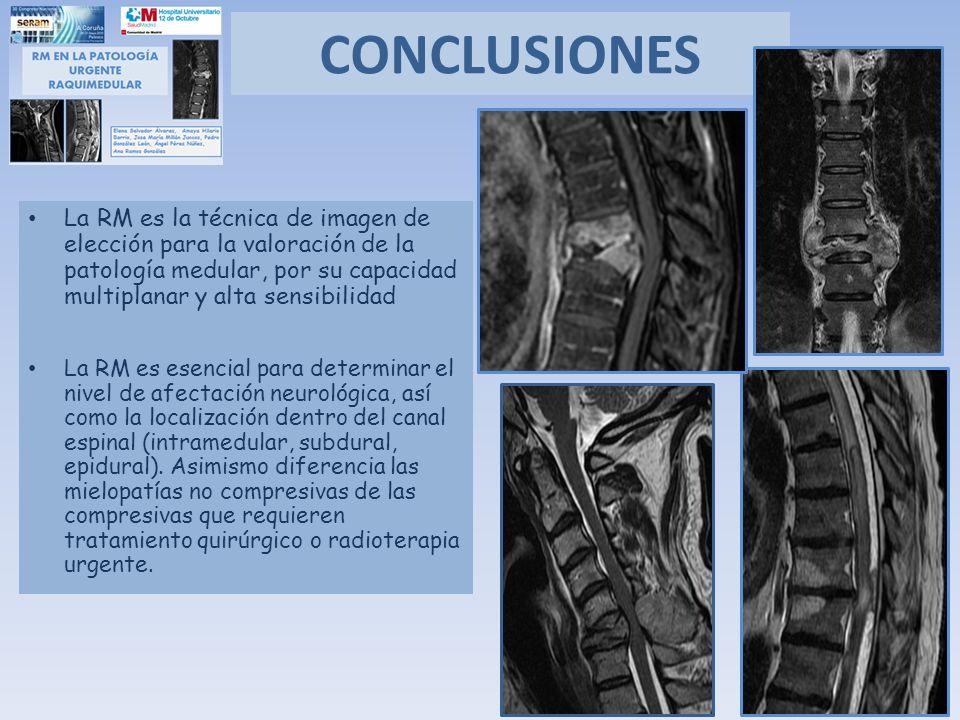 CONCLUSIONES La RM es la técnica de imagen de elección para la valoración de la patología medular, por su capacidad multiplanar y alta sensibilidad La