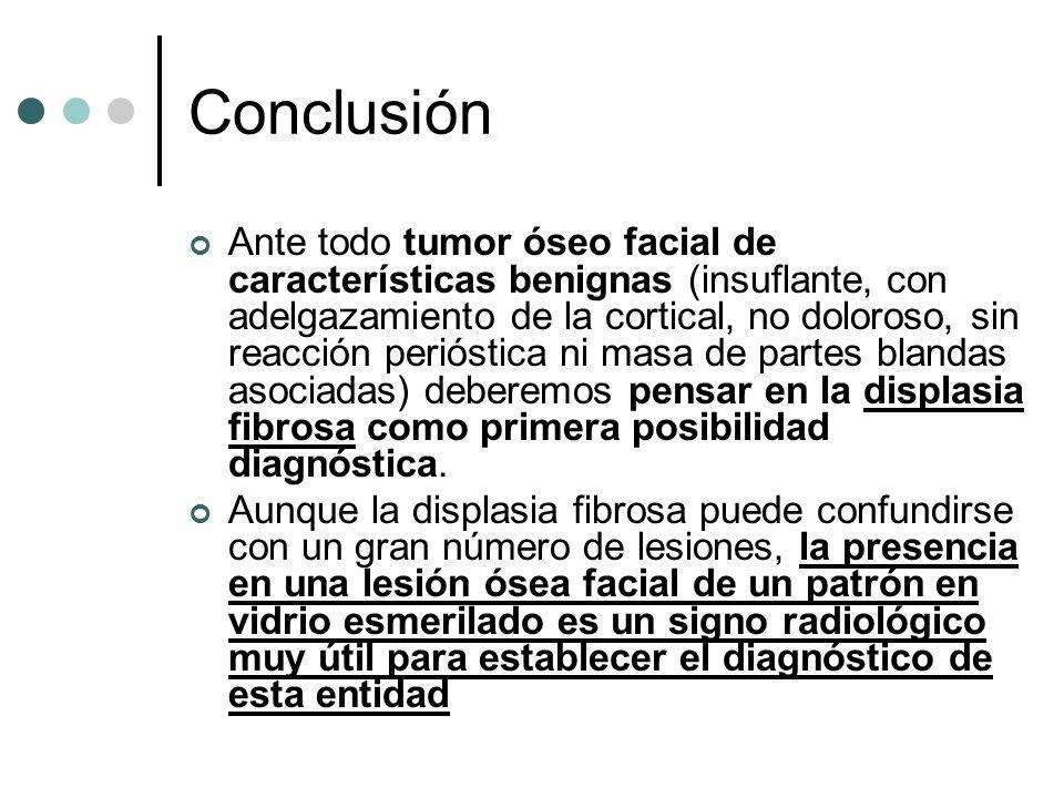 Conclusión Ante todo tumor óseo facial de características benignas (insuflante, con adelgazamiento de la cortical, no doloroso, sin reacción perióstic