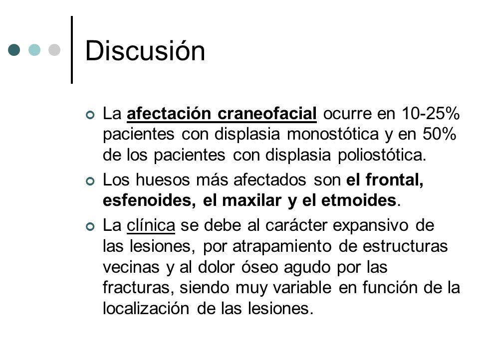 Discusión La afectación craneofacial ocurre en 10-25% pacientes con displasia monostótica y en 50% de los pacientes con displasia poliostótica. Los hu