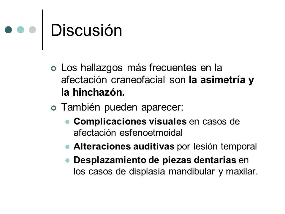 Discusión Los hallazgos más frecuentes en la afectación craneofacial son la asimetría y la hinchazón. También pueden aparecer: Complicaciones visuales