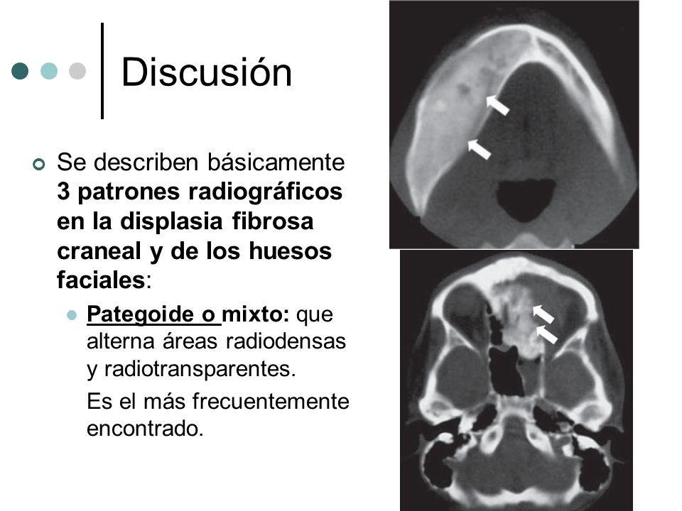 Discusión Se describen básicamente 3 patrones radiográficos en la displasia fibrosa craneal y de los huesos faciales: Pategoide o mixto: que alterna á