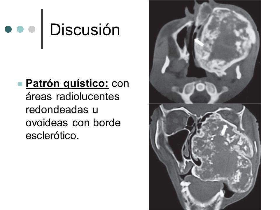 Discusión Patrón quístico: con áreas radiolucentes redondeadas u ovoideas con borde esclerótico.