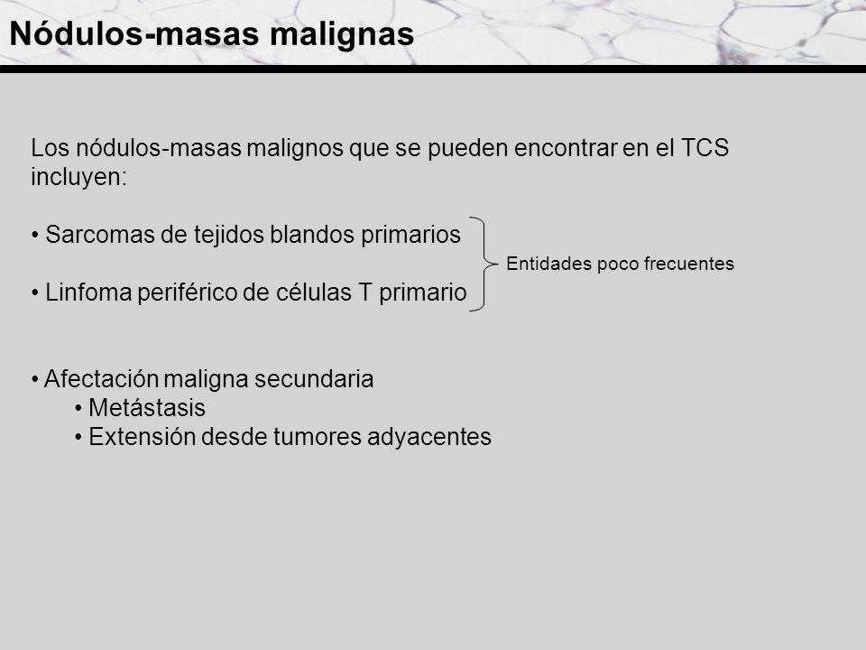 Los nódulos-masas malignos que se pueden encontrar en el TCS incluyen: Sarcomas de tejidos blandos primarios Linfoma periférico de células T primario