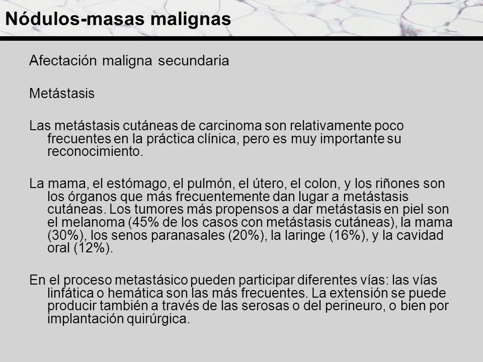 Afectación maligna secundaria Metástasis Las metástasis cutáneas de carcinoma son relativamente poco frecuentes en la práctica clínica, pero es muy im