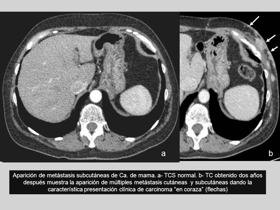 Aparición de metástasis subcutáneas de Ca. de mama. a- TCS normal. b- TC obtenido dos años después muestra la aparición de múltiples metástasis cutáne