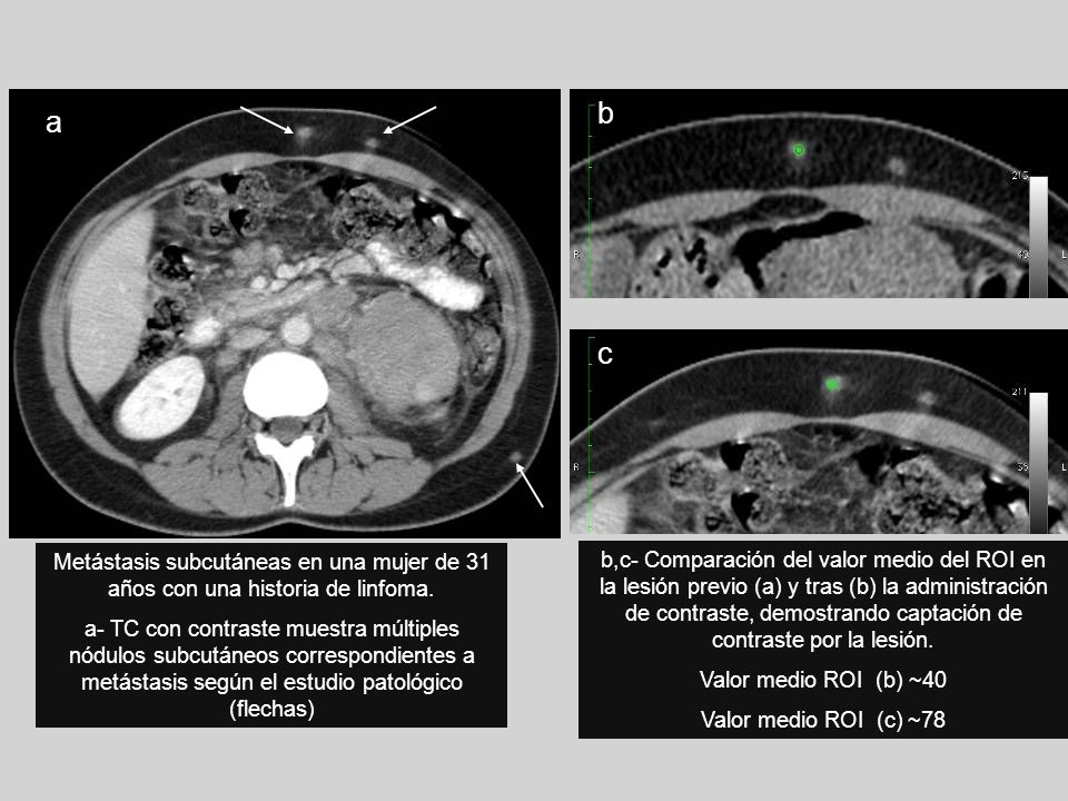 Metástasis subcutáneas en una mujer de 31 años con una historia de linfoma. a- TC con contraste muestra múltiples nódulos subcutáneos correspondientes