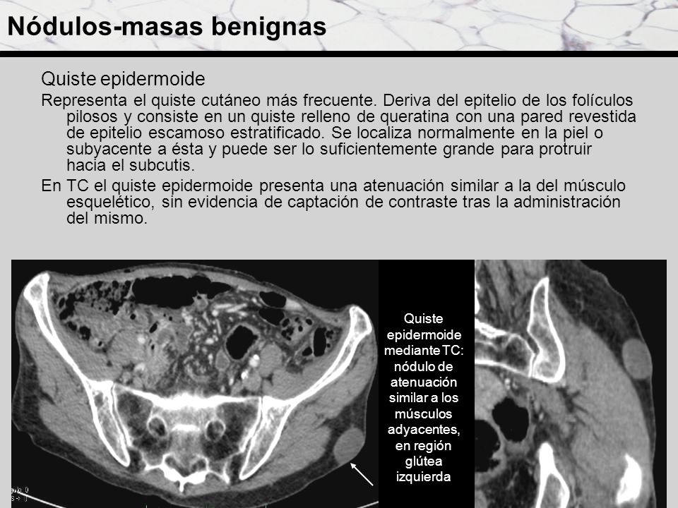 Nódulos-masas benignas Quiste epidermoide Representa el quiste cutáneo más frecuente. Deriva del epitelio de los folículos pilosos y consiste en un qu