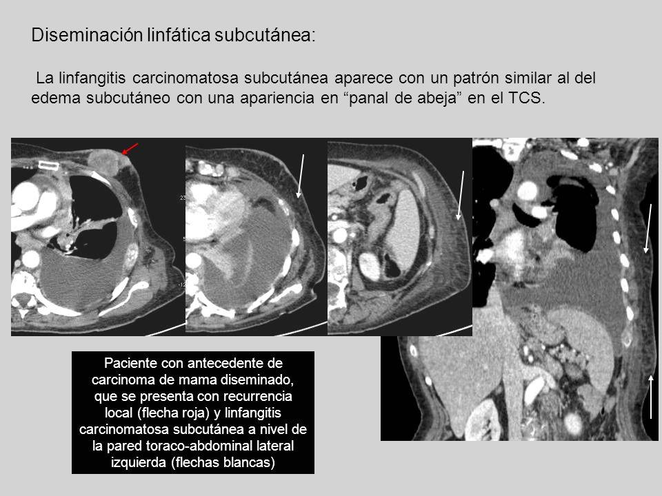 Diseminación linfática subcutánea: La linfangitis carcinomatosa subcutánea aparece con un patrón similar al del edema subcutáneo con una apariencia en