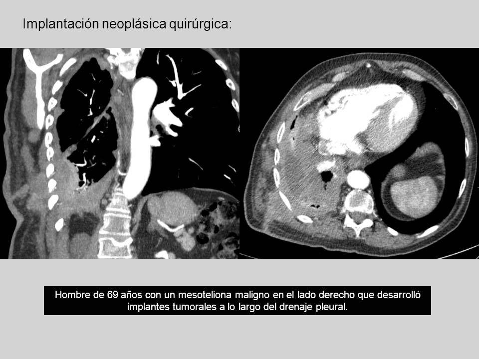 Implantación neoplásica quirúrgica: Hombre de 69 años con un mesoteliona maligno en el lado derecho que desarrolló implantes tumorales a lo largo del