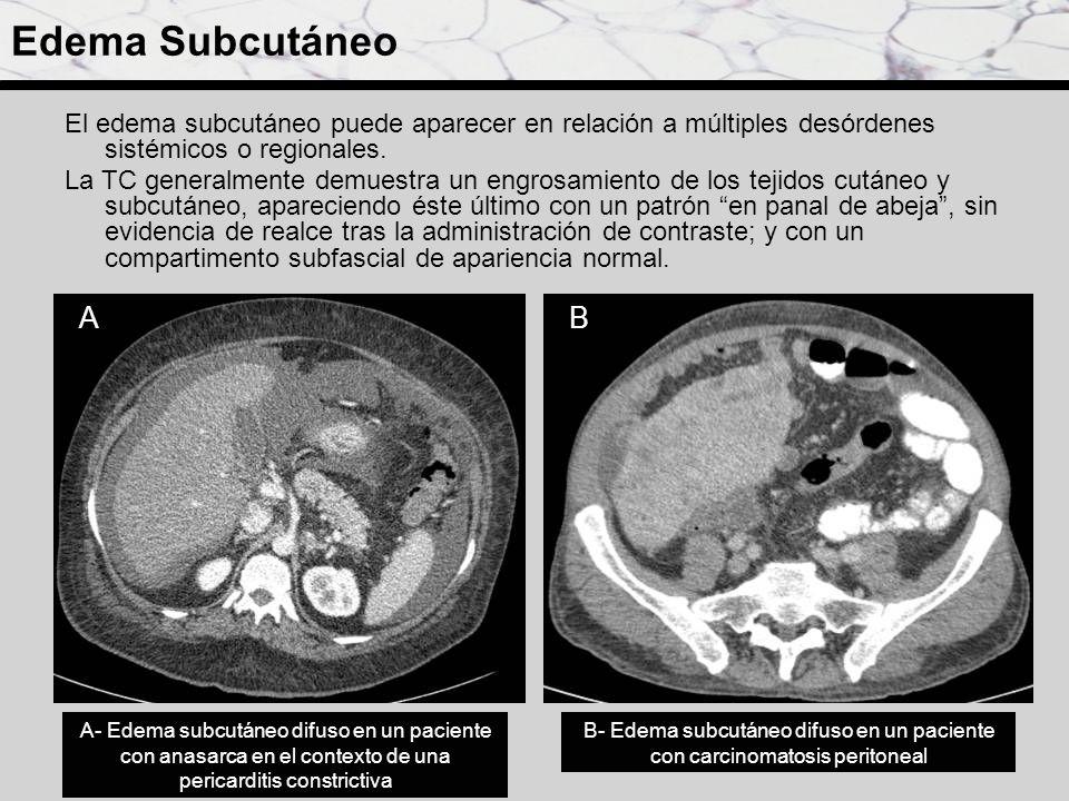 Edema Subcutáneo El edema subcutáneo puede aparecer en relación a múltiples desórdenes sistémicos o regionales. La TC generalmente demuestra un engros