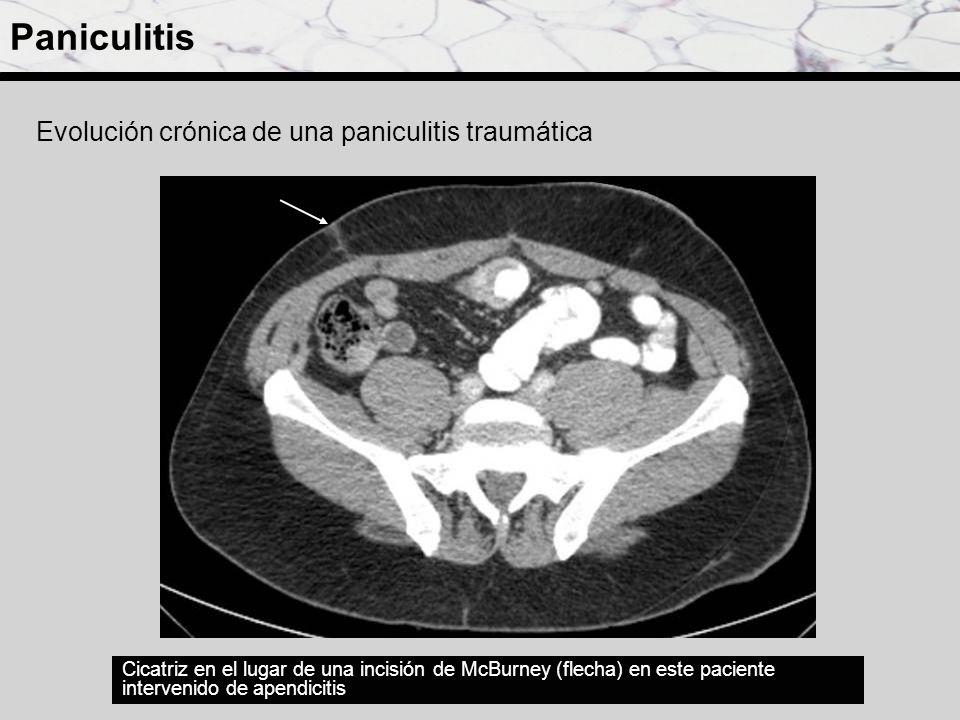 Paniculitis Evolución crónica de una paniculitis traumática Cicatriz en el lugar de una incisión de McBurney (flecha) en este paciente intervenido de