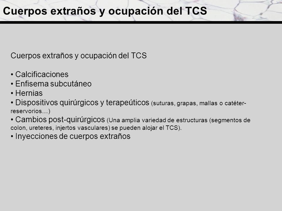 Cuerpos extraños y ocupación del TCS Calcificaciones Enfisema subcutáneo Hernias Dispositivos quirúrgicos y terapeúticos (suturas, grapas, mallas o ca