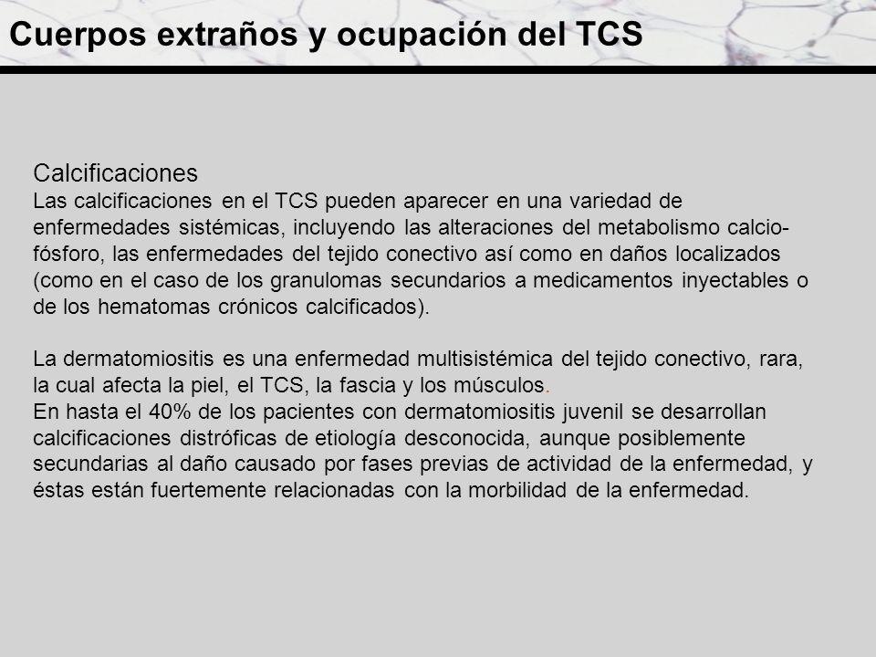 Calcificaciones Las calcificaciones en el TCS pueden aparecer en una variedad de enfermedades sistémicas, incluyendo las alteraciones del metabolismo
