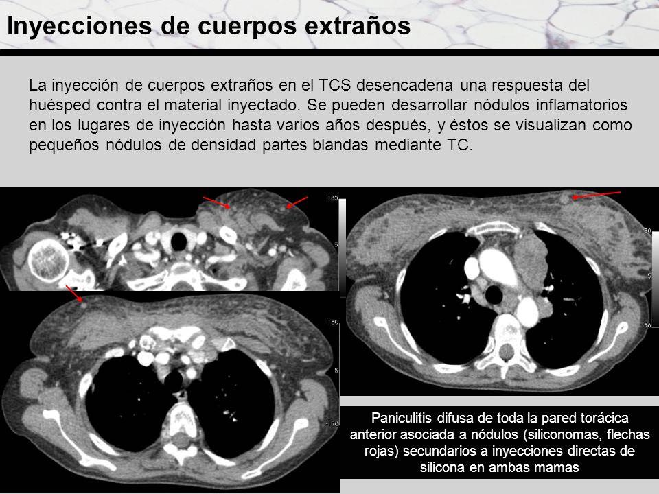 Inyecciones de cuerpos extraños Paniculitis difusa de toda la pared torácica anterior asociada a nódulos (siliconomas, flechas rojas) secundarios a in