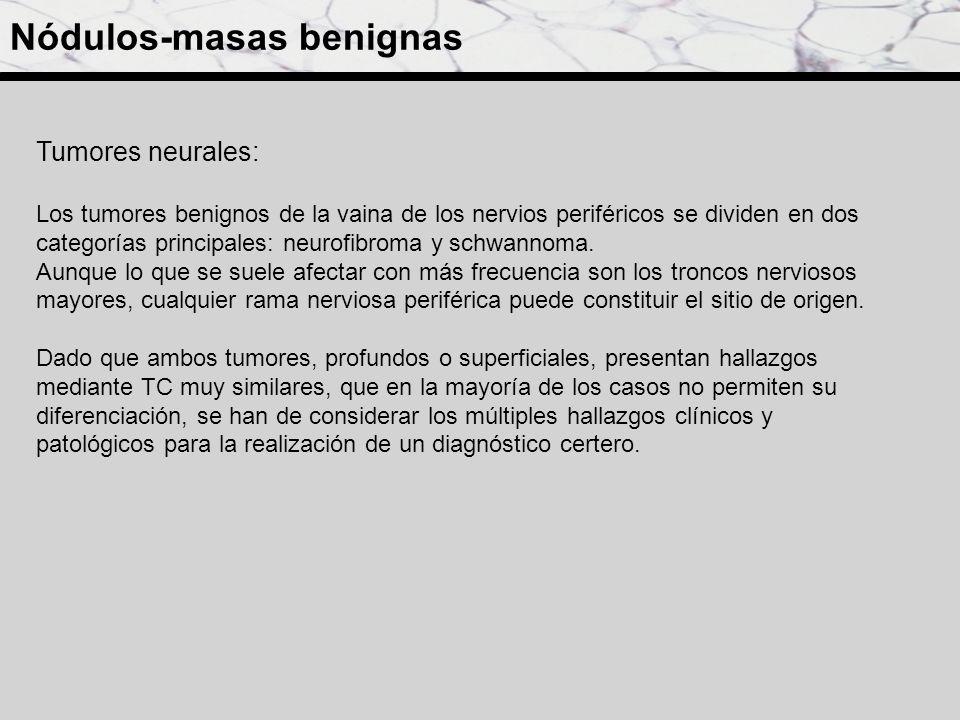 Neurofibromas: Clásicamente, se han descrito tres tipos de neurofibromas: localizado, difuso y plexiforme (patognomónico de la neurofibromatosis tipo1 (NF1)).
