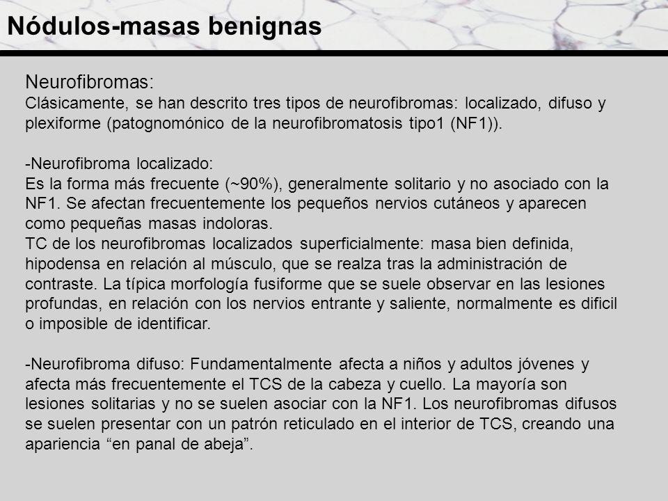 Metástasis subcutáneas de melanoma : TCs consecutivos (enero (a), marzo (b) y mayo (c)), obtenidos en una mujer de 71 años con una historia de melanoma, muestran crecimiento (flechas rojas y amarillas) y nueva aparición (flechas azules) de metástasis subcutáneas.