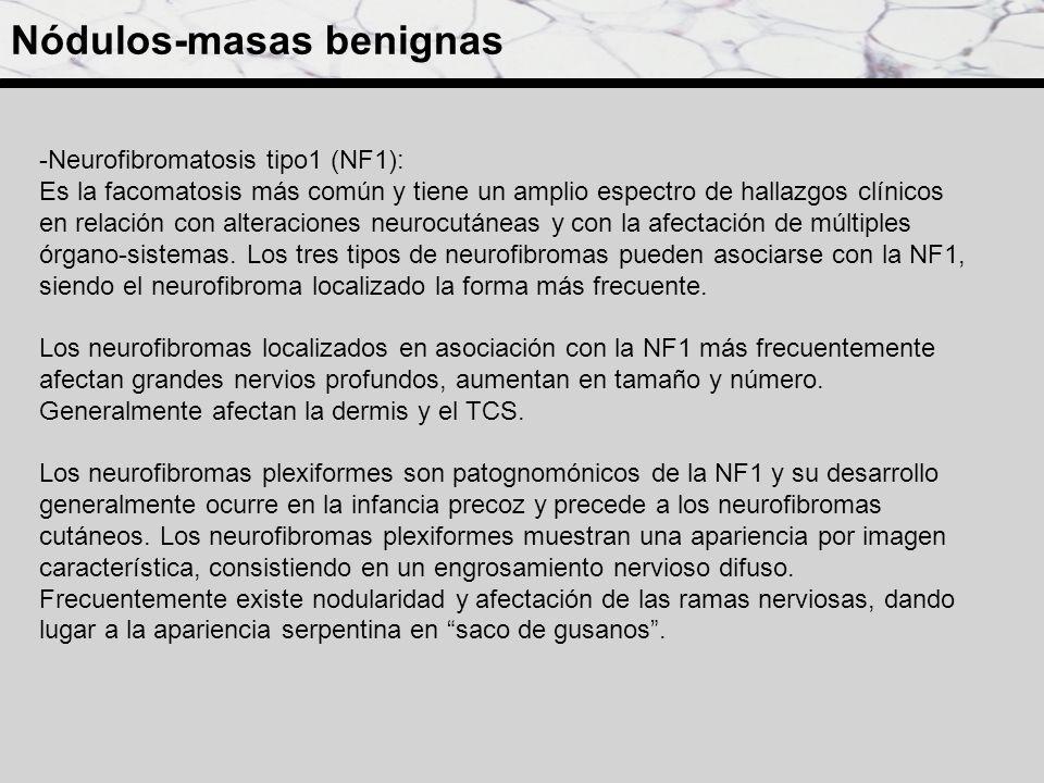 Paciente con neurofibromatosis 1 y numerosos neurofibromas localizados, cutáneos y subcutáneos.