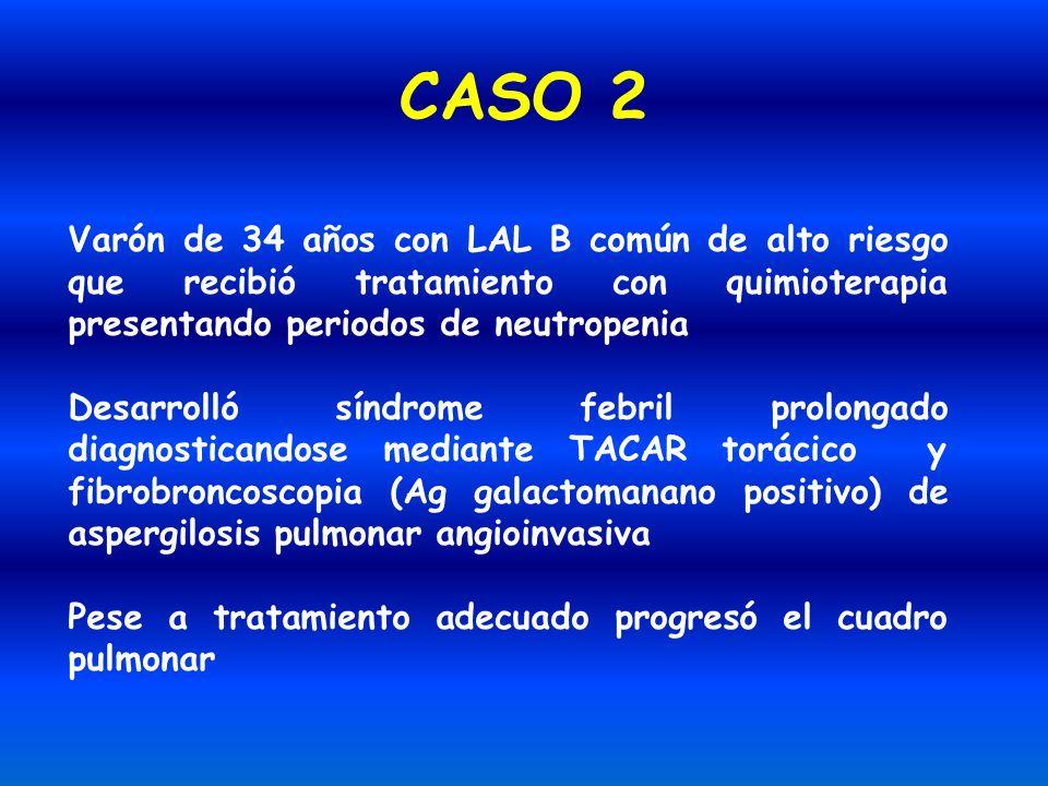CASO 2 Varón de 34 años con LAL B común de alto riesgo que recibió tratamiento con quimioterapia presentando periodos de neutropenia Desarrolló síndro