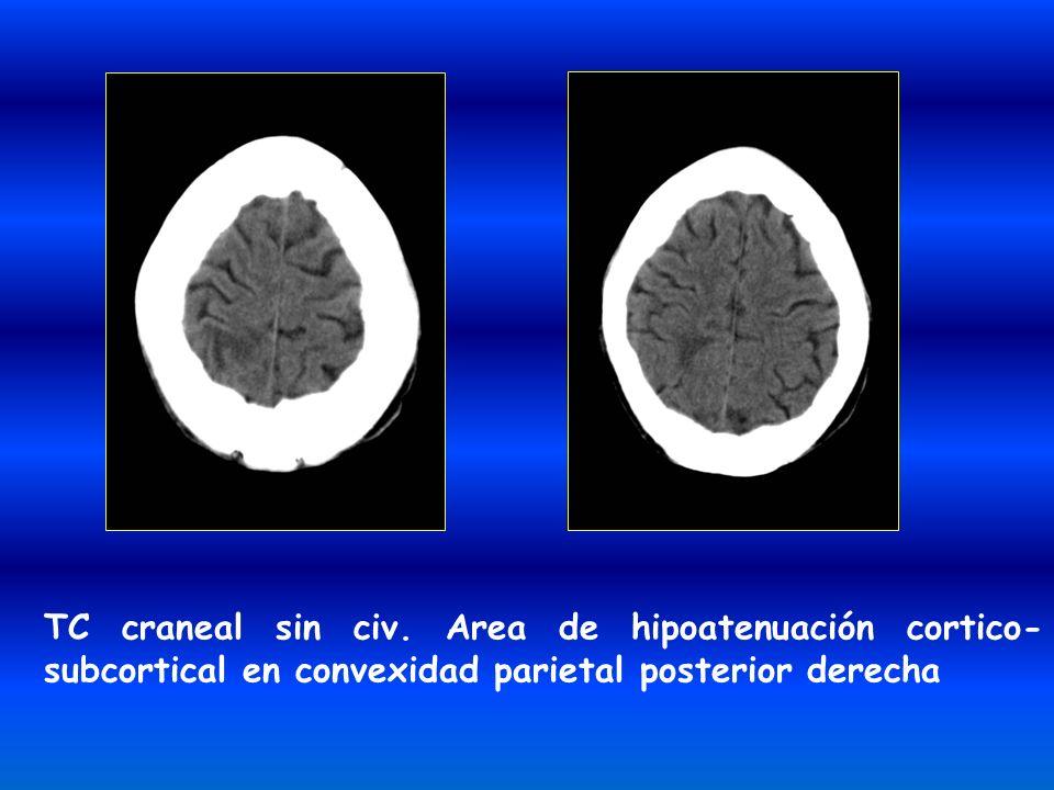 TC craneal sin civ. Area de hipoatenuación cortico- subcortical en convexidad parietal posterior derecha