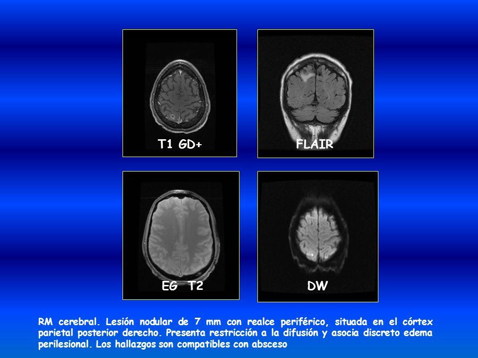 RM cerebral. Lesión nodular de 7 mm con realce periférico, situada en el córtex parietal posterior derecho. Presenta restricción a la difusión y asoci