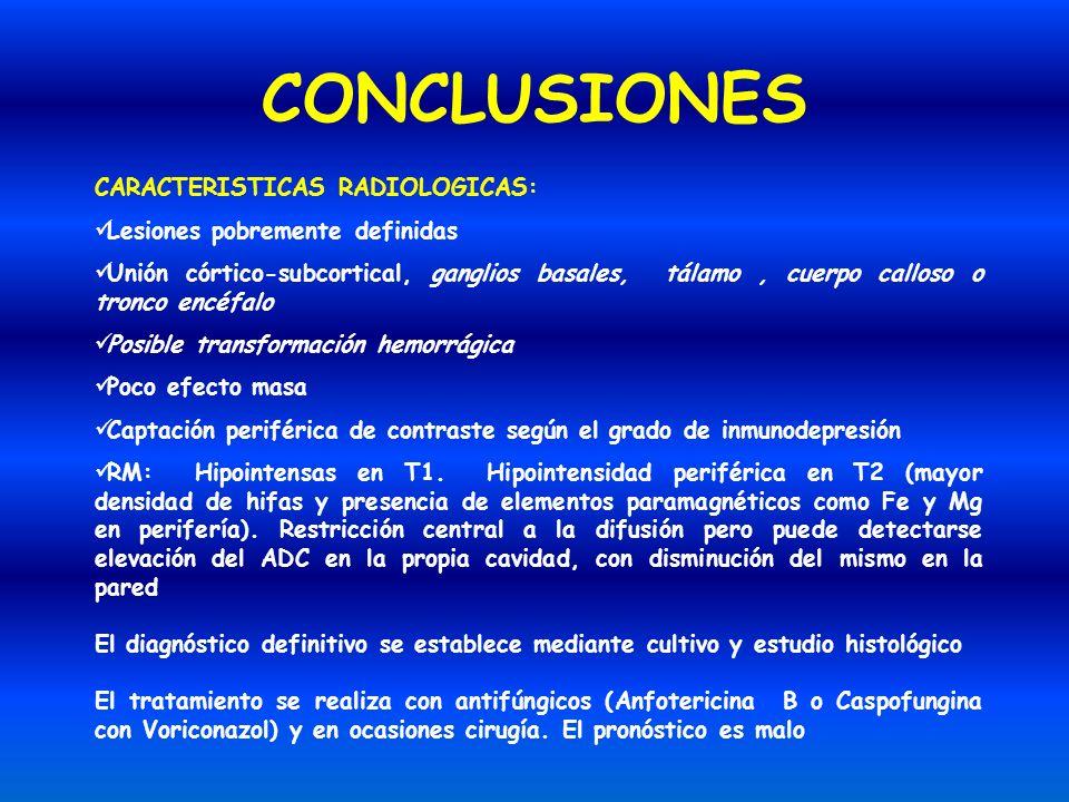 CONCLUSIONES CARACTERISTICAS RADIOLOGICAS: Lesiones pobremente definidas Unión córtico-subcortical, ganglios basales, tálamo, cuerpo calloso o tronco