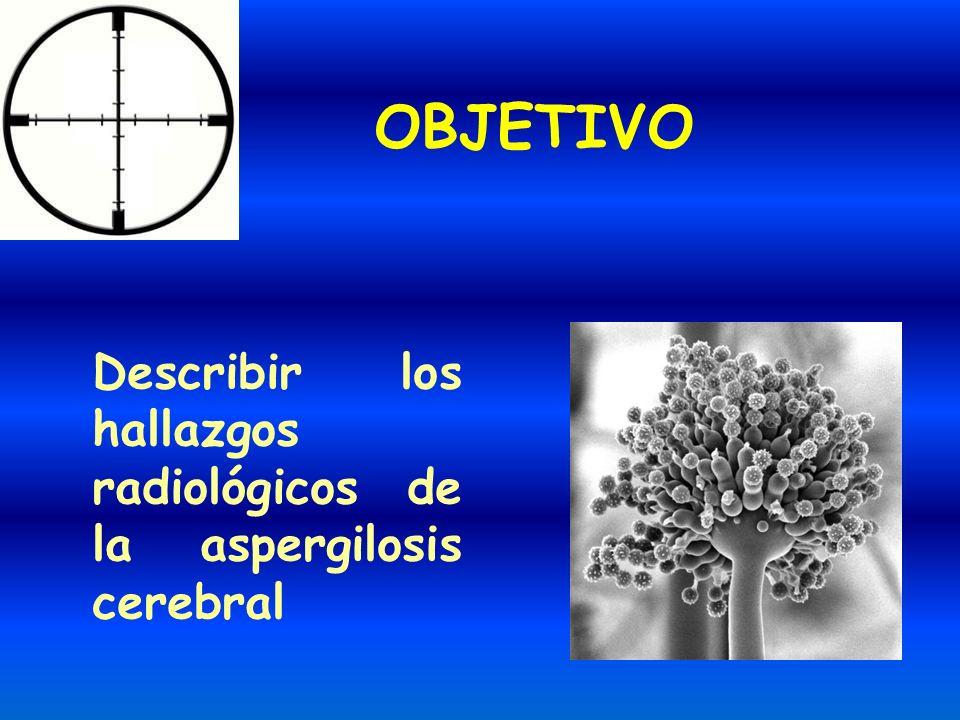 OBJETIVO Describir los hallazgos radiológicos de la aspergilosis cerebral