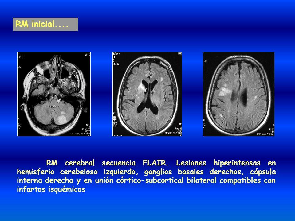 RM inicial.... RM cerebral secuencia FLAIR. Lesiones hiperintensas en hemisferio cerebeloso izquierdo, ganglios basales derechos, cápsula interna dere