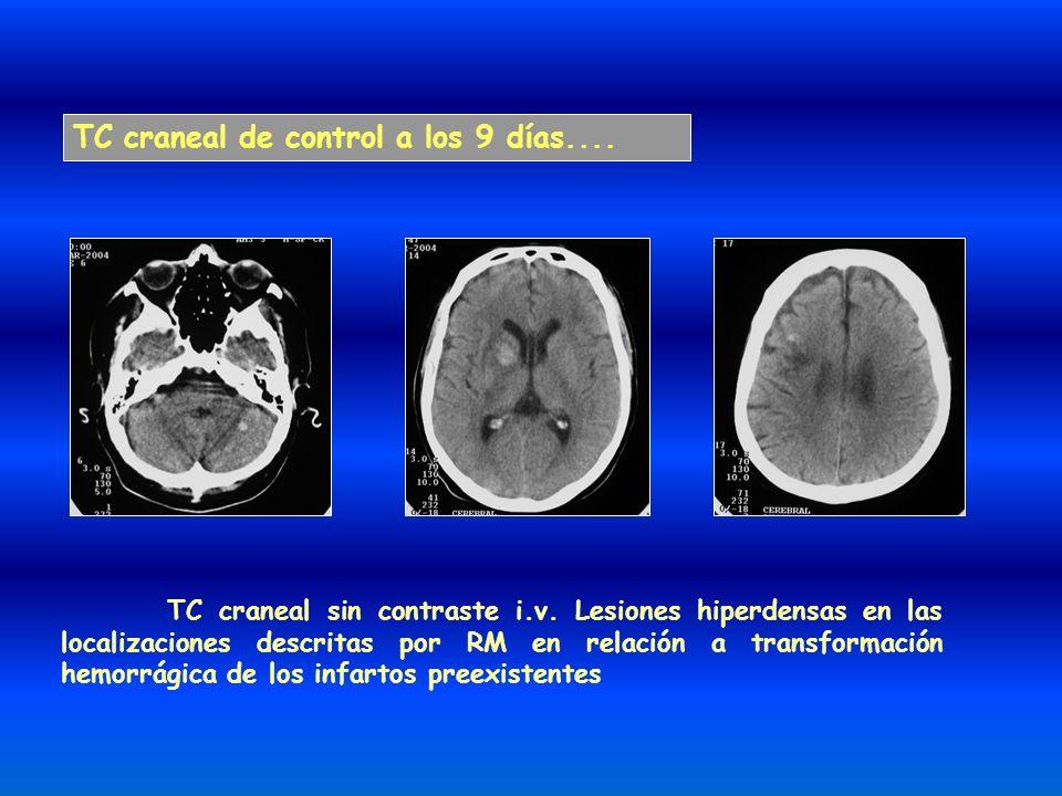 TC craneal de control a los 9 días.... TC craneal sin contraste i.v. Lesiones hiperdensas en las localizaciones descritas por RM en relación a transfo