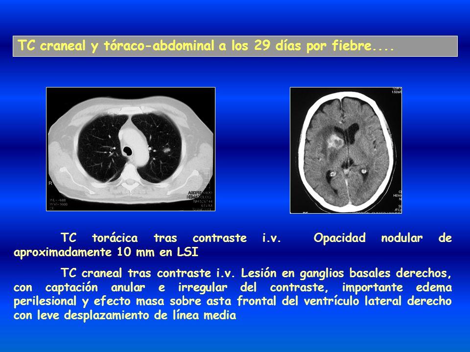 TC craneal y tóraco-abdominal a los 29 días por fiebre.... TC torácica tras contraste i.v. Opacidad nodular de aproximadamente 10 mm en LSI TC craneal