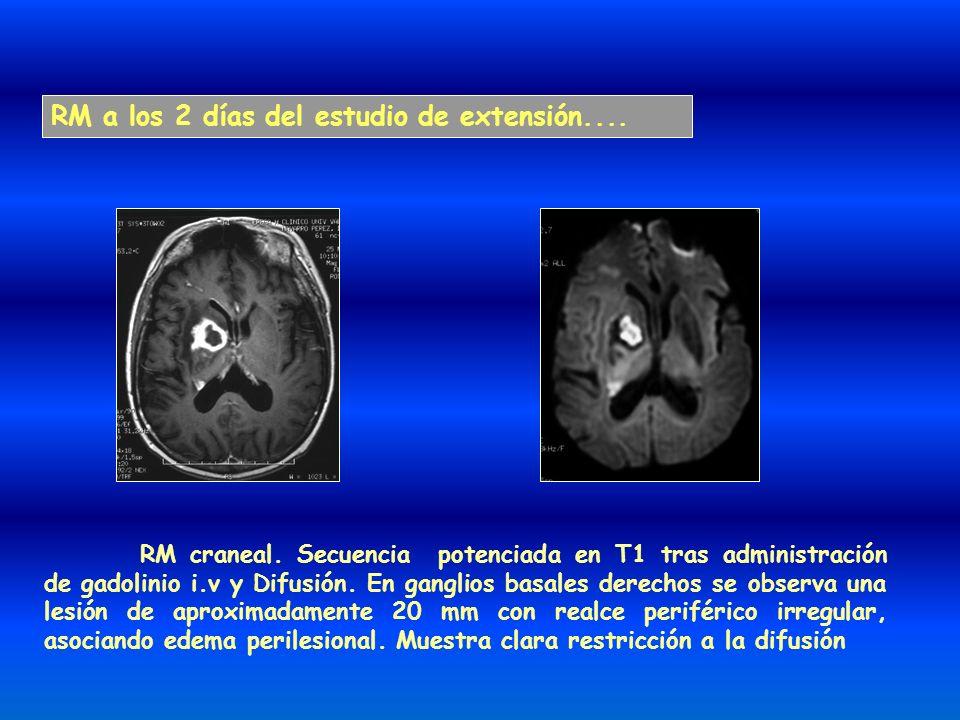 RM a los 2 días del estudio de extensión.... RM craneal. Secuencia potenciada en T1 tras administración de gadolinio i.v y Difusión. En ganglios basal