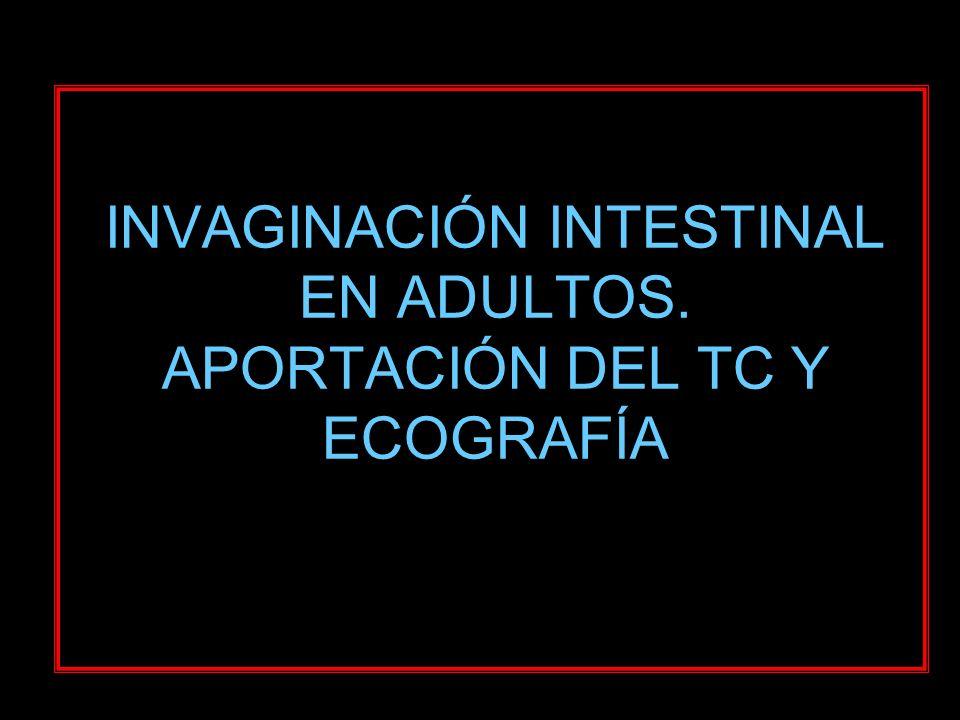 INTRODUCCIÓN El 5% de invaginaciones intestinales ocurren en adulto.