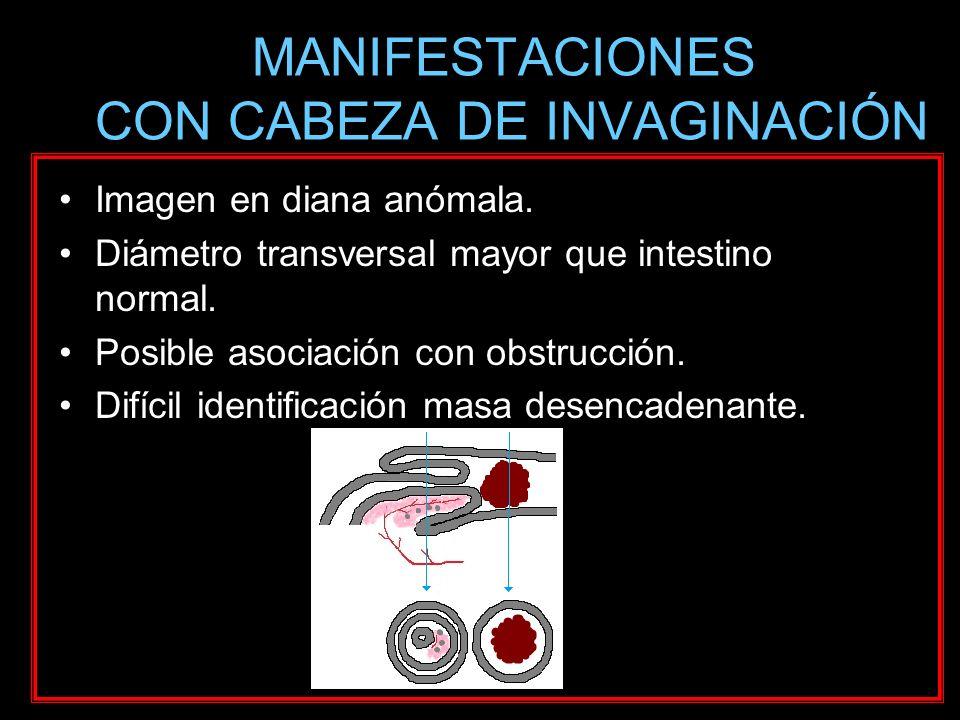 MANIFESTACIONES CON CABEZA DE INVAGINACIÓN Imagen en diana anómala. Diámetro transversal mayor que intestino normal. Posible asociación con obstrucció