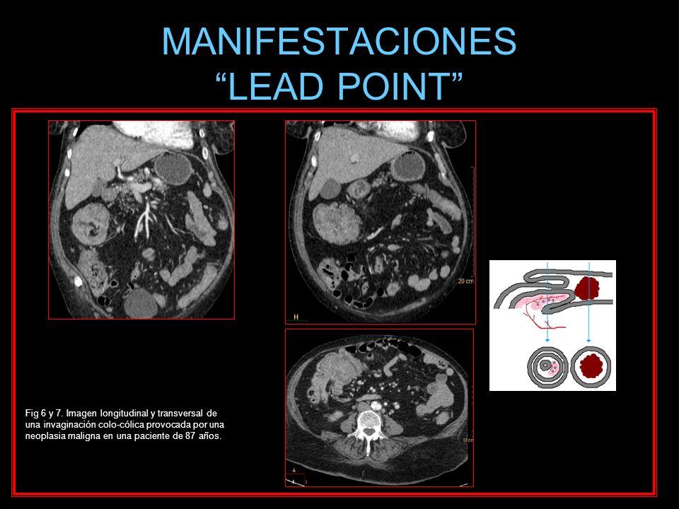 MANIFESTACIONES LEAD POINT Fig 6 y 7. Imagen longitudinal y transversal de una invaginación colo-cólica provocada por una neoplasia maligna en una pac