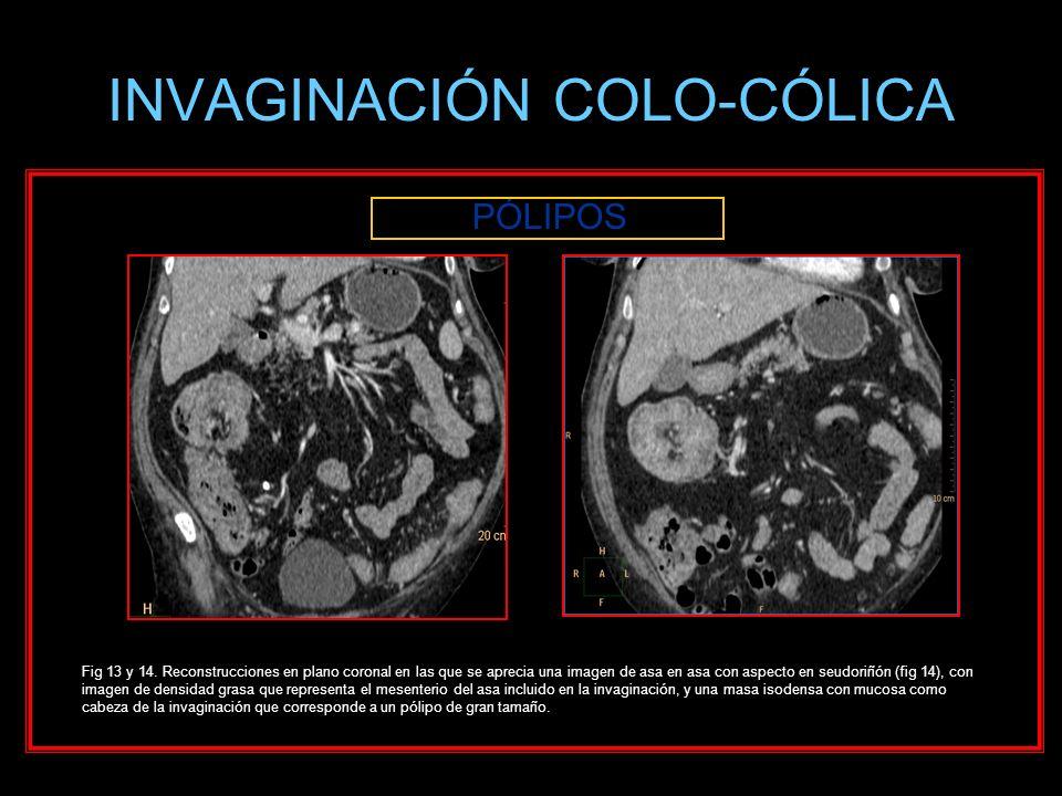 INVAGINACIÓN COLO-CÓLICA PÓLIPOS Fig 13 y 14. Reconstrucciones en plano coronal en las que se aprecia una imagen de asa en asa con aspecto en seudoriñ