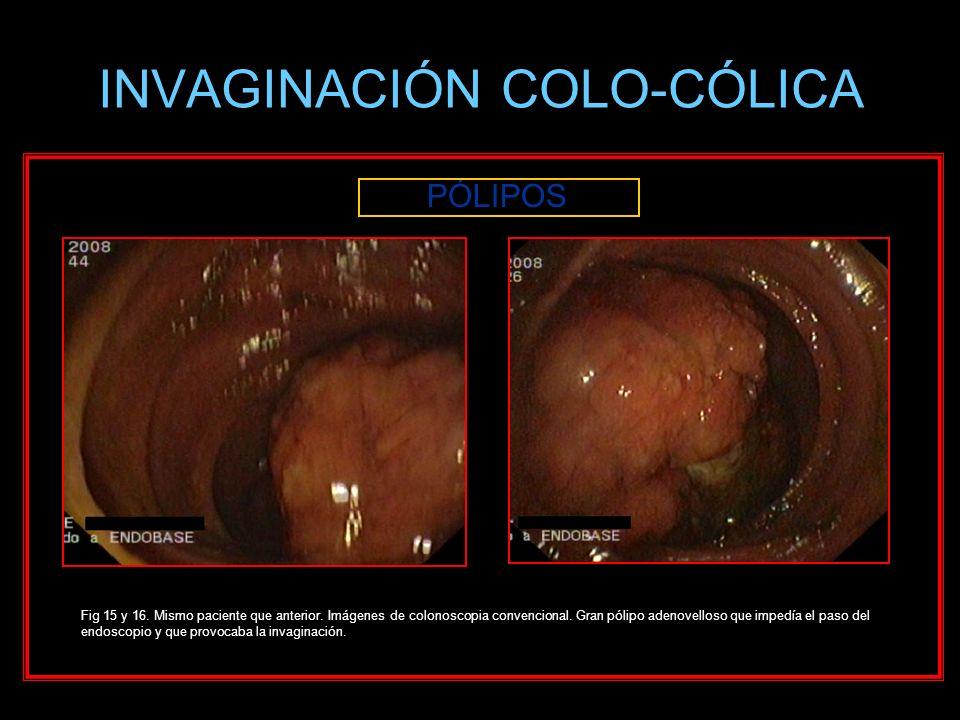 INVAGINACIÓN COLO-CÓLICA PÓLIPOS Fig 15 y 16. Mismo paciente que anterior. Imágenes de colonoscopia convencional. Gran pólipo adenovelloso que impedía