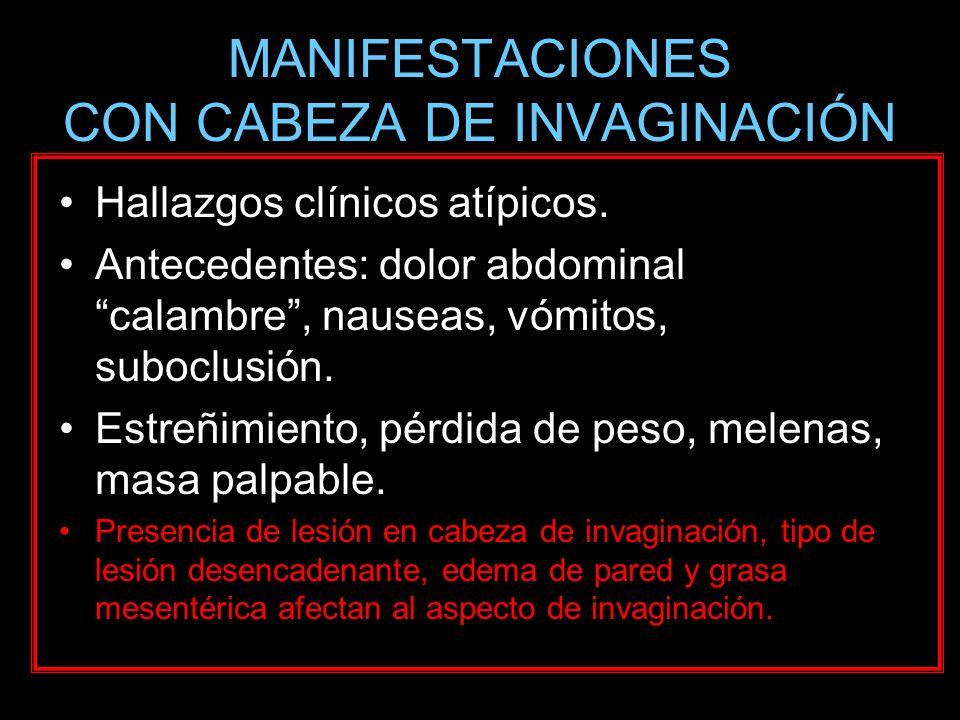 MANIFESTACIONES CON CABEZA DE INVAGINACIÓN Hallazgos clínicos atípicos. Antecedentes: dolor abdominal calambre, nauseas, vómitos, suboclusión. Estreñi