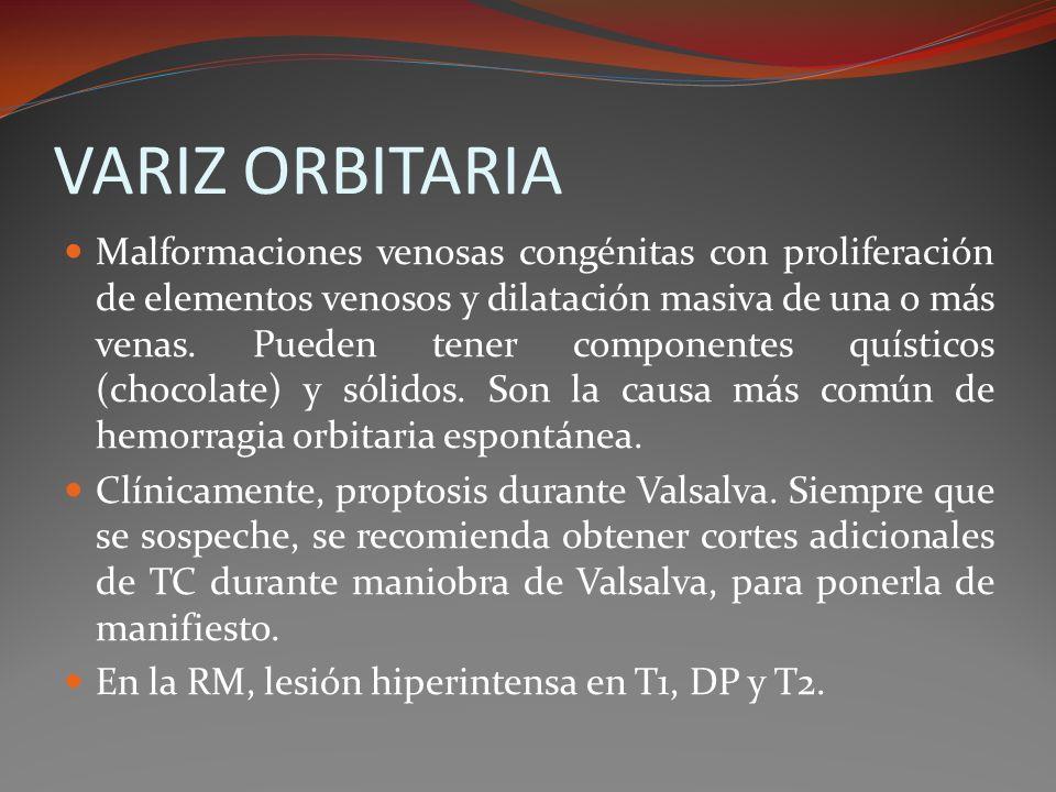 VARIZ ORBITARIA Malformaciones venosas congénitas con proliferación de elementos venosos y dilatación masiva de una o más venas. Pueden tener componen