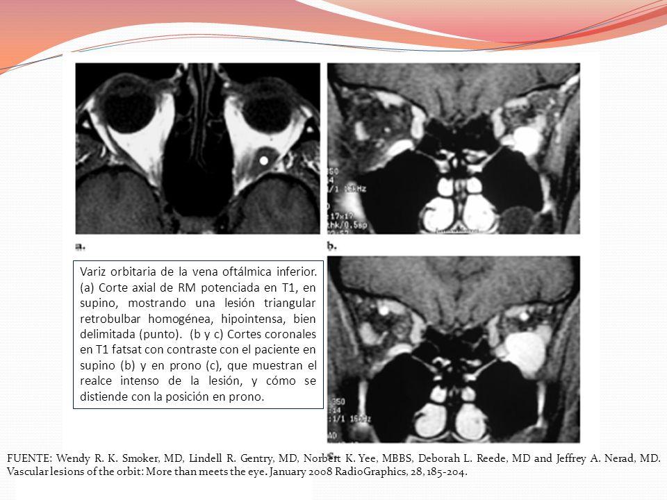 Variz orbitaria de la vena oftálmica inferior. (a) Corte axial de RM potenciada en T1, en supino, mostrando una lesión triangular retrobulbar homogéne
