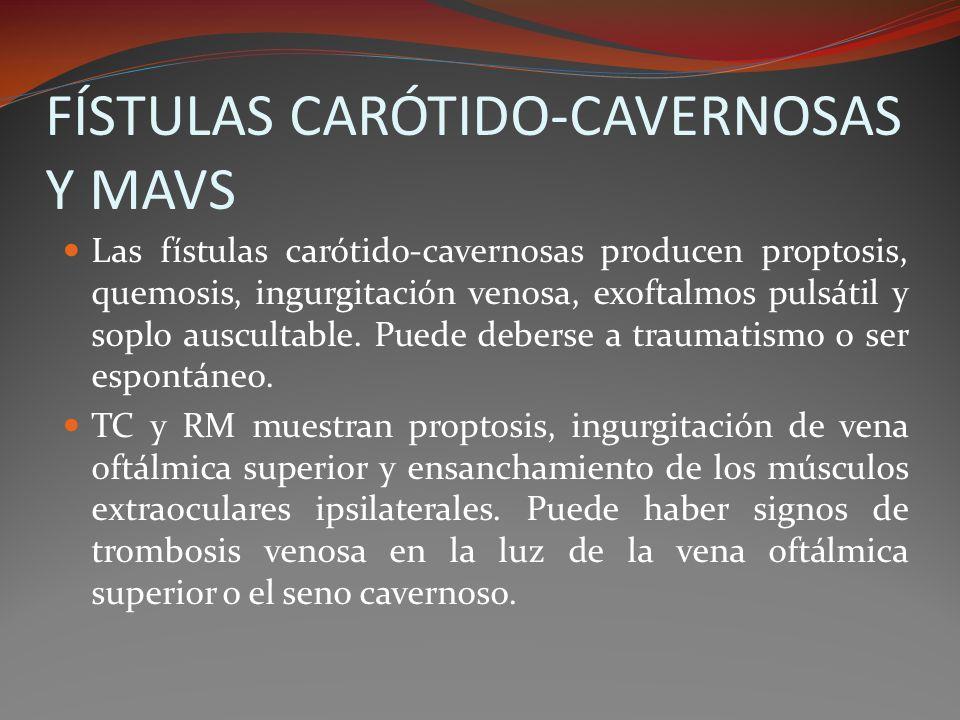 FÍSTULAS CARÓTIDO-CAVERNOSAS Y MAVS Las fístulas carótido-cavernosas producen proptosis, quemosis, ingurgitación venosa, exoftalmos pulsátil y soplo a